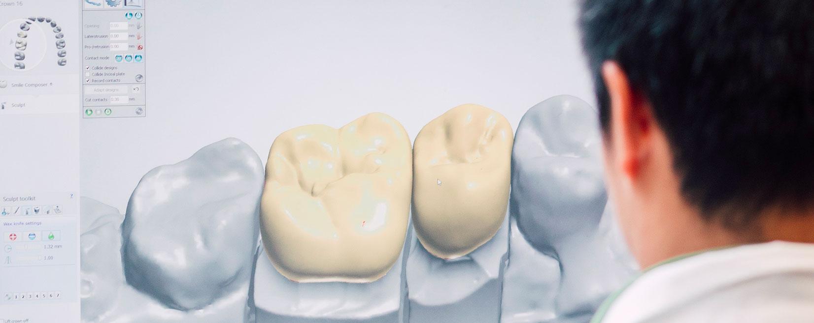 Full Dental Service Digital Lab